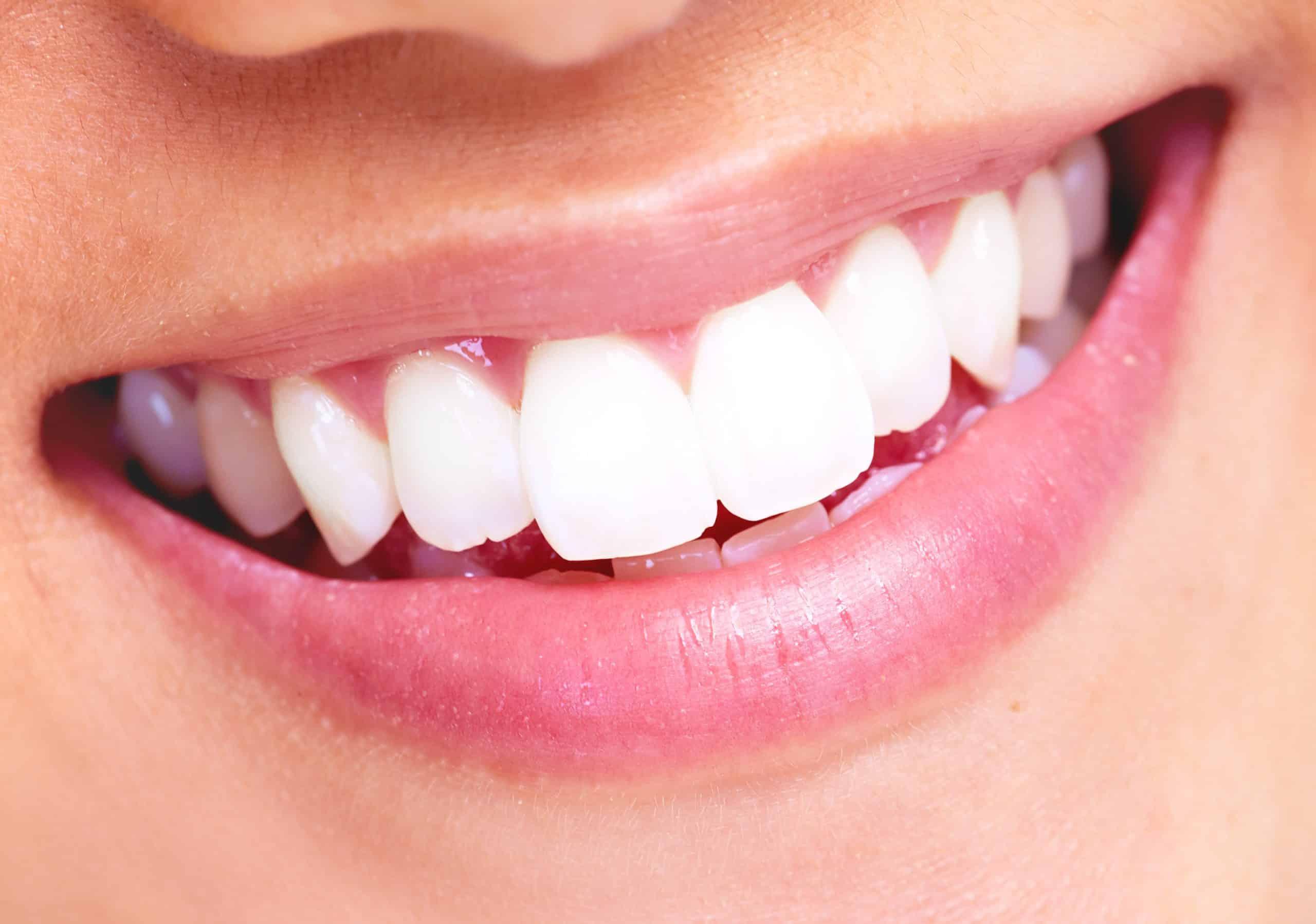 красивые зубы стоматология гомель