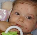 Rubeole : en savoir davantage à propos de cette maladie infantile